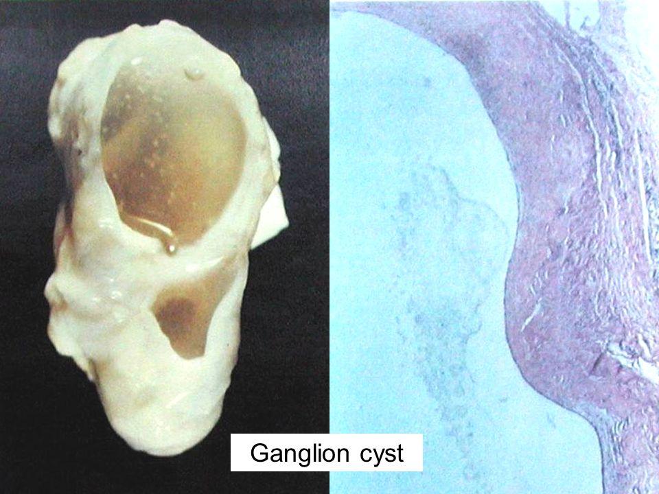 Ganglion cyst