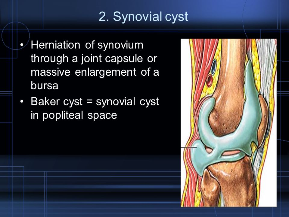 2. Synovial cyst Herniation of synovium through a joint capsule or massive enlargement of a bursa Baker cyst = synovial cyst in popliteal space