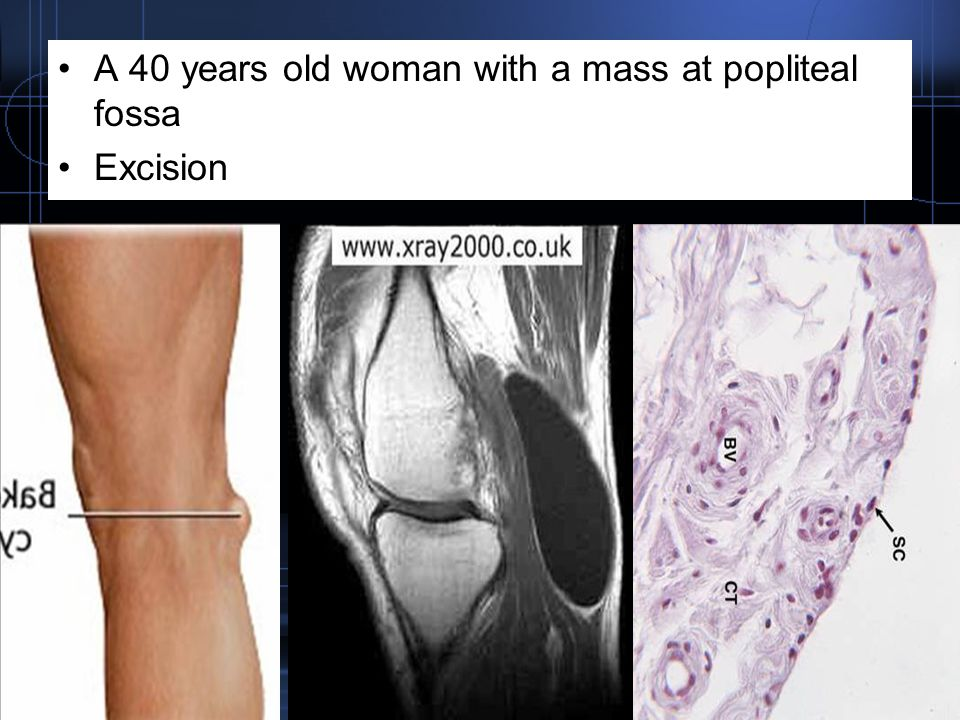 A 40 years old woman with a mass at popliteal fossa Excision