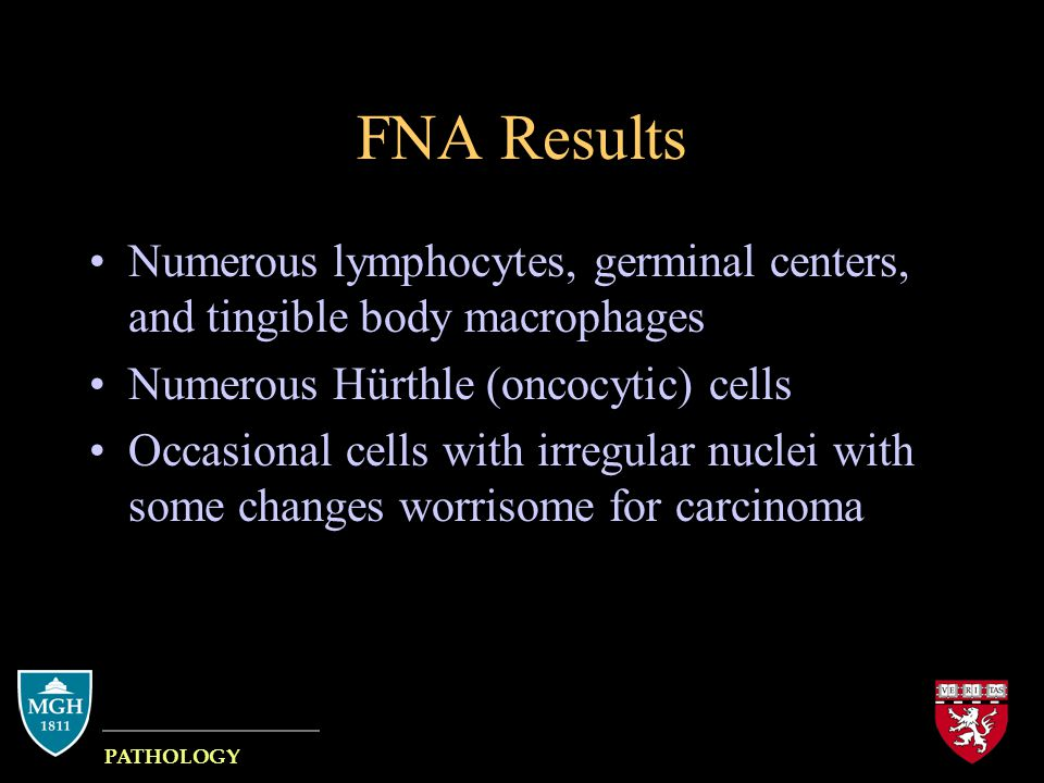 FNA Results Numerous lymphocytes, germinal centers, and tingible body macrophages Numerous Hürthle (oncocytic) cells Occasional cells with irregular n