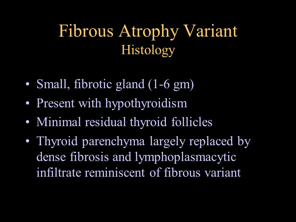 Fibrous Atrophy Variant Histology Small, fibrotic gland (1-6 gm) Present with hypothyroidism Minimal residual thyroid follicles Thyroid parenchyma lar