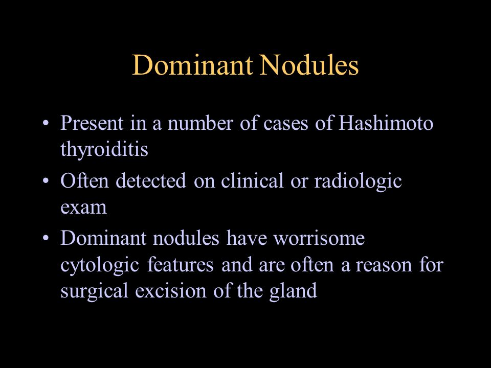 Dominant Nodules Present in a number of cases of Hashimoto thyroiditis Often detected on clinical or radiologic exam Dominant nodules have worrisome c
