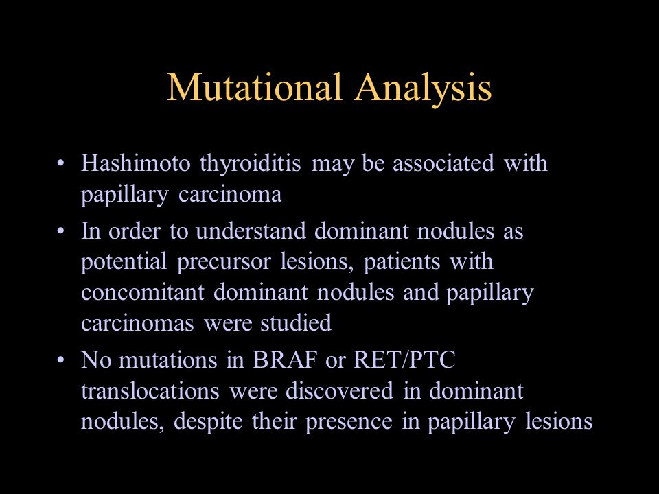 Mutational Analysis Hashimoto thyroiditis may be associated with papillary carcinoma In order to understand dominant nodules as potential precursor le