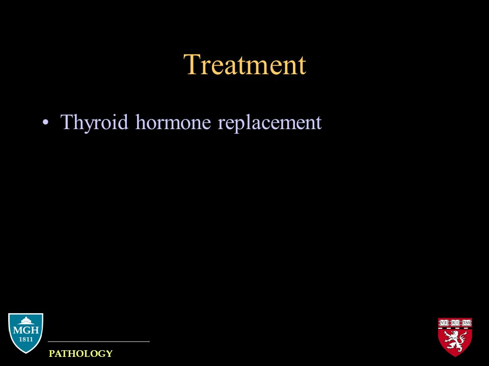 Treatment Thyroid hormone replacement MASSACHUSETTS GENERAL HOSPITAL PATHOLOGY HARVARD MEDICAL SCHOOL
