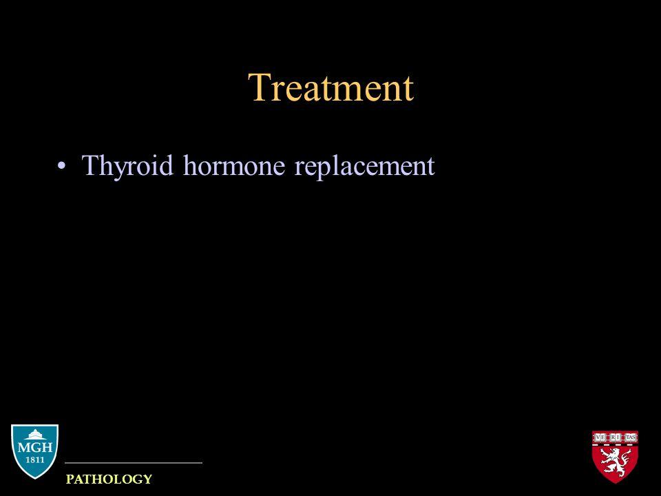 Pathology Why discuss Hashimoto.