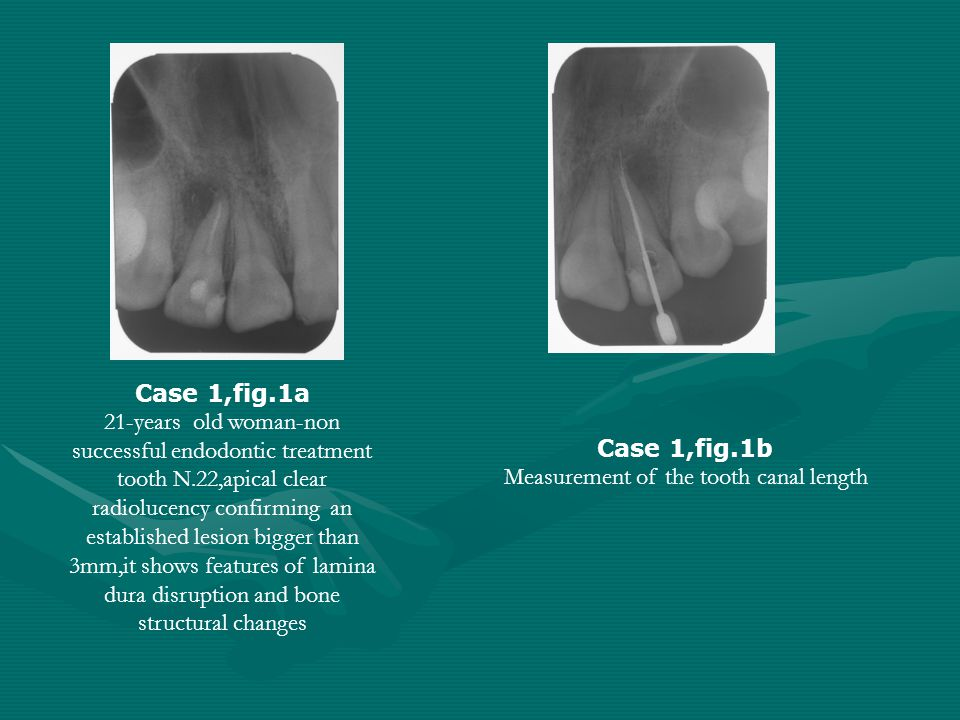 Case 1,fig.1a 21-years old woman-non successful endodontic treatment tooth N.22,apical clear radiolucency confirming an established lesion bigger than