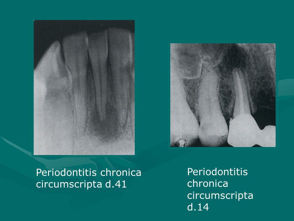 Periodontitis chronica circumscripta d.14 Periodontitis chronica circumscripta d.41