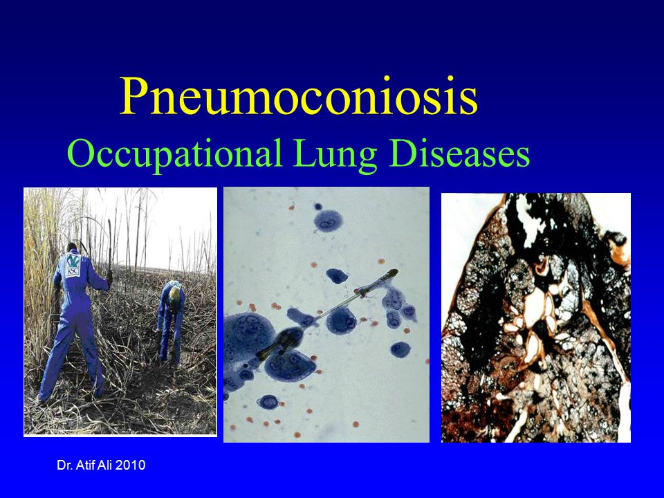 Dr. Atif Ali 2010 Pneumoconiosis Occupational Lung Diseases
