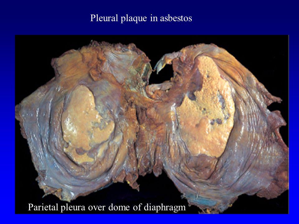 Pleural plaque in asbestos Parietal pleura over dome of diaphragm