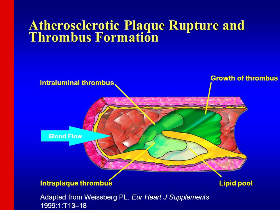 Intraluminal thrombus Growth of thrombus Intraplaque thrombusLipid pool Blood Flow Atherosclerotic Plaque Rupture and Thrombus Formation Adapted from Weissberg PL.