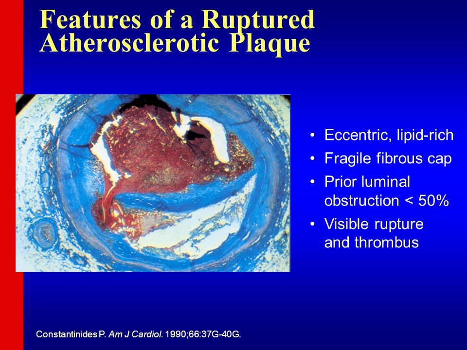 Eccentric, lipid-rich Fragile fibrous cap Prior luminal obstruction < 50% Visible rupture and thrombus Constantinides P.