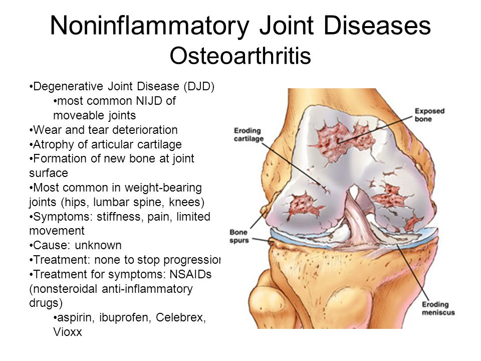 Noninflammatory Joint Diseases Osteoarthritis Degenerative Joint Disease (DJD) most common NIJD of moveable joints Wear and tear deterioration Atrophy of articular cartilage Formation of new bone at joint surface Most common in weight-bearing joints (hips, lumbar spine, knees) Symptoms: stiffness, pain, limited movement Cause: unknown Treatment: none to stop progression Treatment for symptoms: NSAIDs (nonsteroidal anti-inflammatory drugs) aspirin, ibuprofen, Celebrex, Vioxx