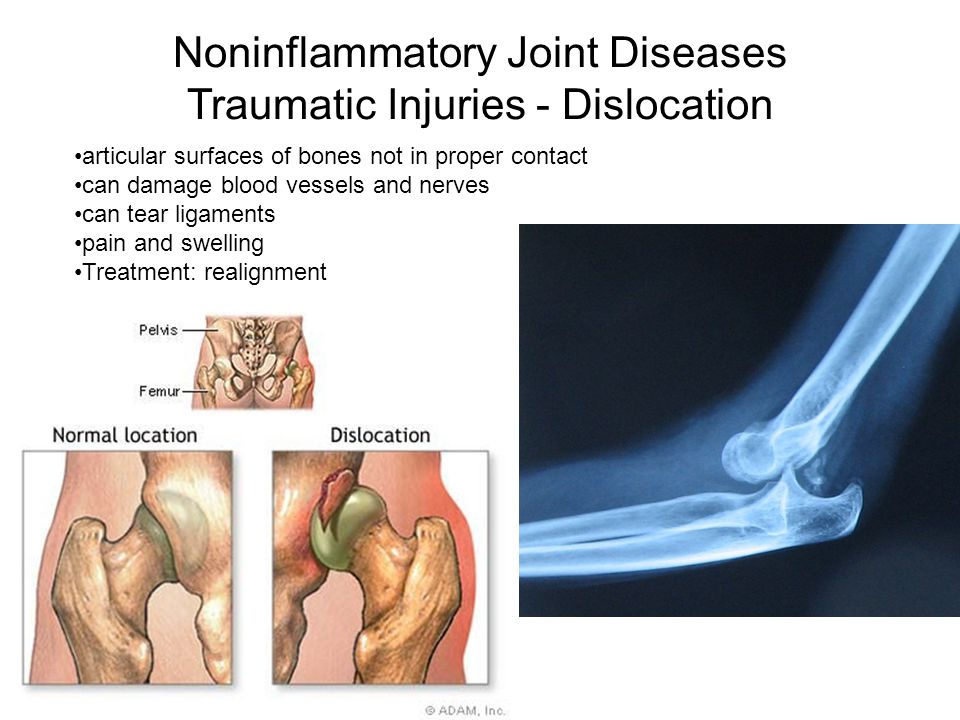 Noninflammatory Joint Diseases Traumatic Injuries - Dislocation articular surfaces of bones not in proper contact can damage blood vessels and nerves can tear ligaments pain and swelling Treatment: realignment