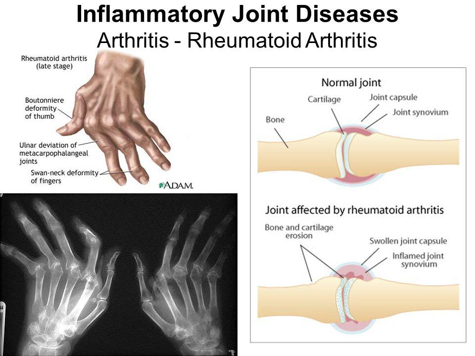 Inflammatory Joint Diseases Arthritis - Rheumatoid Arthritis