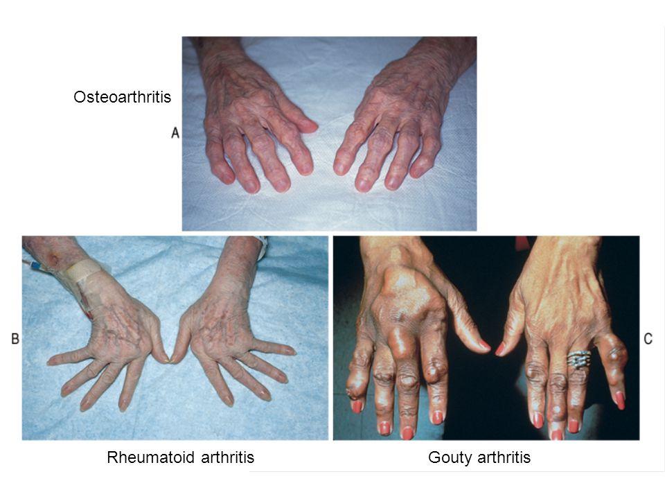Osteoarthritis Rheumatoid arthritisGouty arthritis