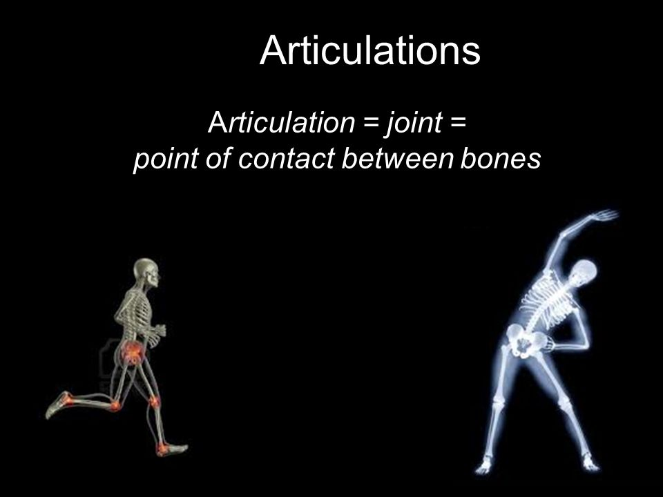 Joint Disorders Rheumatoid arthritis –Chronic and systemic –Inflammation of synovial membrane –Cartilage destroyed, bone erosion –Progressive crippling and deformity –Pain, inflammation, decreased mobility, aching, stiffness –Treat with corticosteroid drugs and NSAIDS