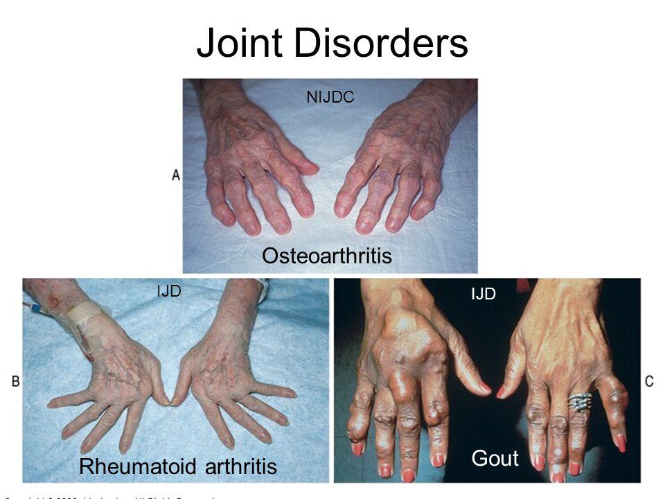 Joint Disorders Osteoarthritis Rheumatoid arthritis Gout NIJDC IJD
