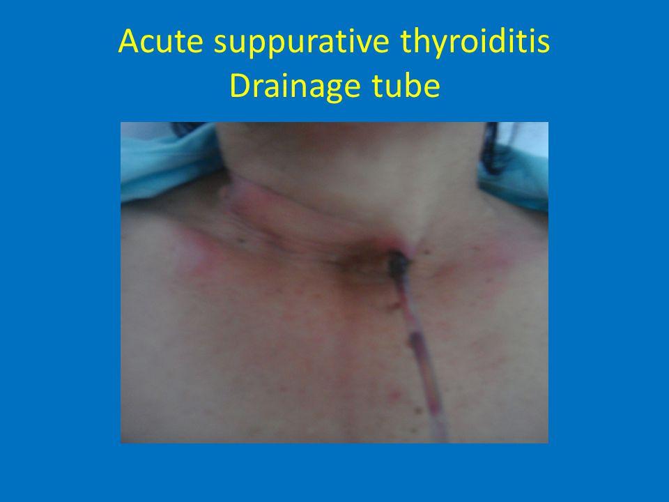 Acute suppurative thyroiditis Drainage tube