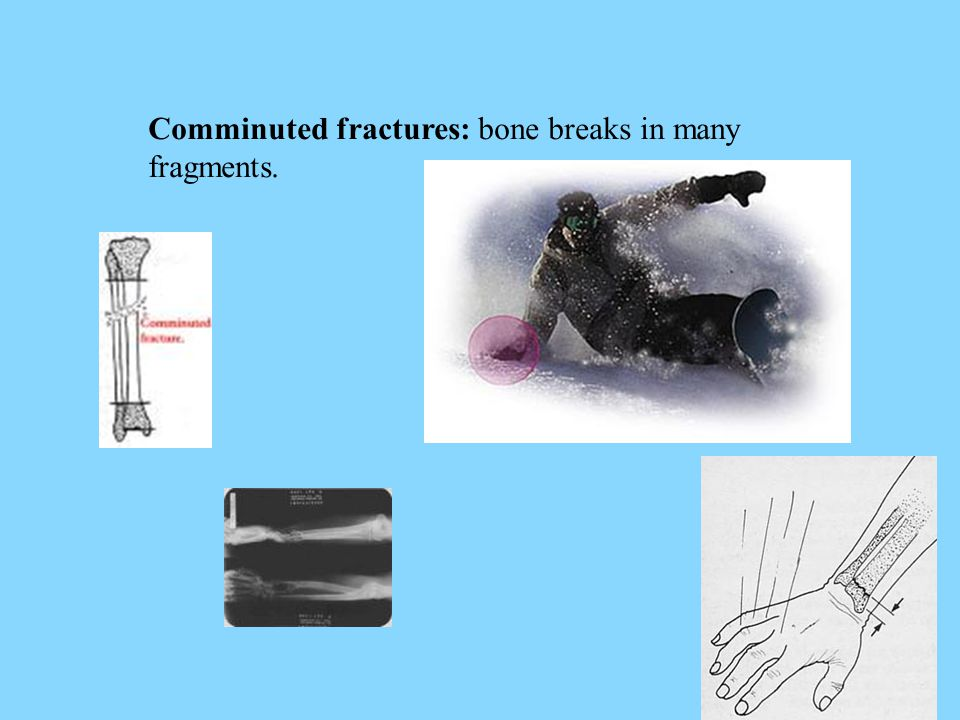 Comminuted fractures: bone breaks in many fragments.