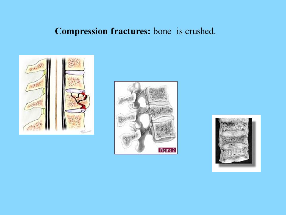 Compression fractures: bone is crushed.