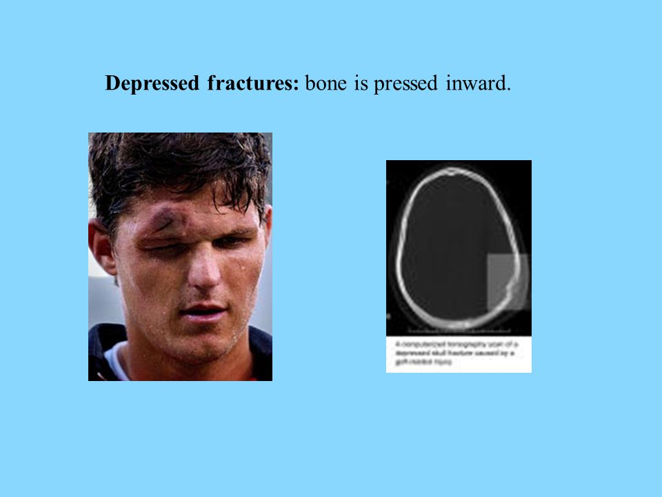 Depressed fractures: bone is pressed inward.