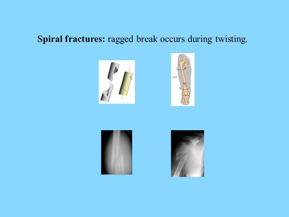 Spiral fractures: ragged break occurs during twisting.