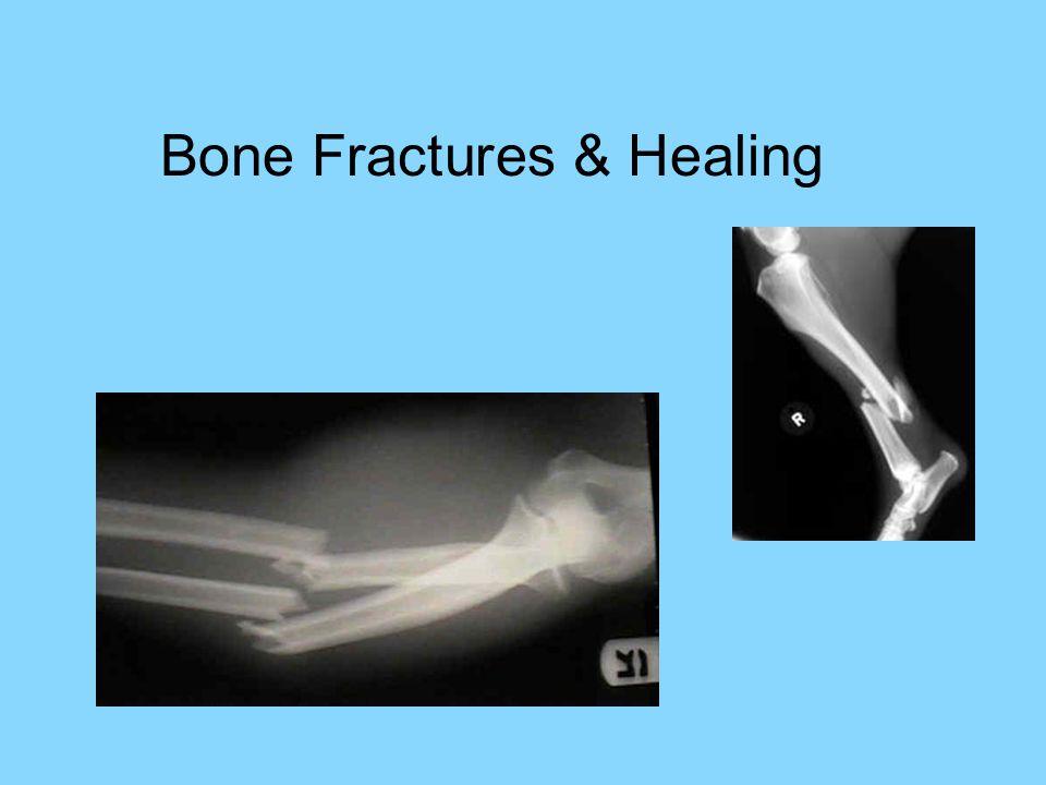 Bone Fractures & Healing