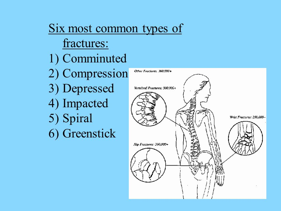 Six most common types of fractures: 1)Comminuted 2)Compression 3)Depressed 4)Impacted 5)Spiral 6)Greenstick