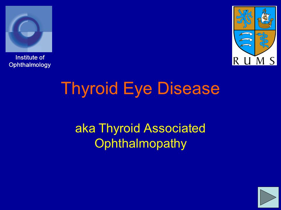Causes TED/TAO is an eye disease associated with disease of the thyroid gland Most commonly, it occurs with an overactive thyroid (Thyrotoxicosis), which itself can have different causes: –Grave's diseaseGrave's disease –Toxic nodular goitre It also occurs in hypothyroidism, for example with Hashimoto's disease