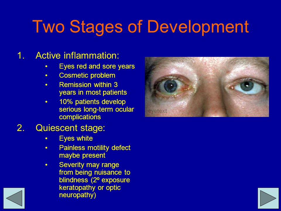 Two Stages of Development 1.Active inflammation: Eyes red and sore years Cosmetic problem Remission within 3 years in most patients 10% patients devel