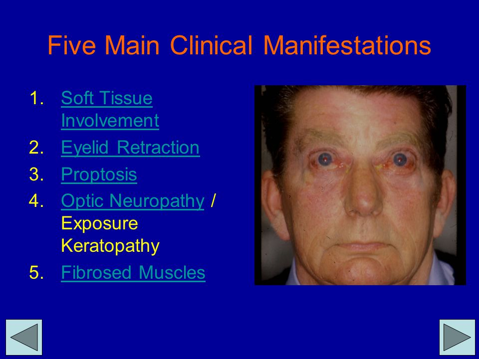 Five Main Clinical Manifestations 1.Soft Tissue InvolvementSoft Tissue Involvement 2.Eyelid RetractionEyelid Retraction 3.ProptosisProptosis 4.Optic N