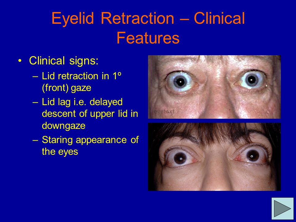 Eyelid Retraction – Clinical Features Clinical signs: –Lid retraction in 1º (front) gaze –Lid lag i.e. delayed descent of upper lid in downgaze –Stari