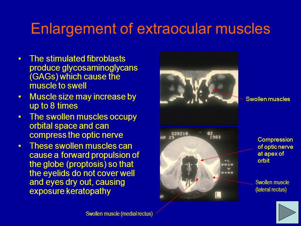 Eyelid Retraction - R x Mild eyelid retraction does not require R x, in 50% of cases, there is spontaneous improvement R x of associated hyperthyroidism may also improve lid retraction Main indications are exposure keratopathy and poor cosmesis Treatment is surgical if required, when both the eyelid retraction and thyroid are stable