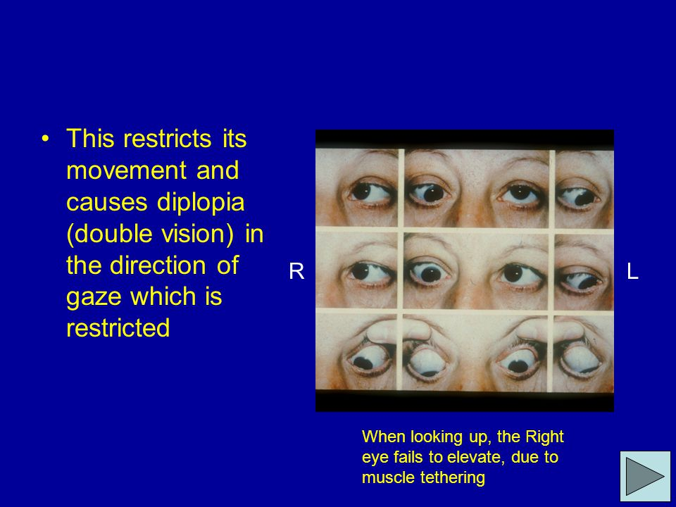 This restricts its movement and causes diplopia (double vision) in the direction of gaze which is restricted RL When looking up, the Right eye fails t