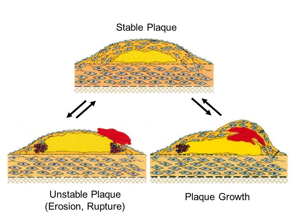 Stable Plaque Unstable Plaque (Erosion, Rupture) Plaque Growth