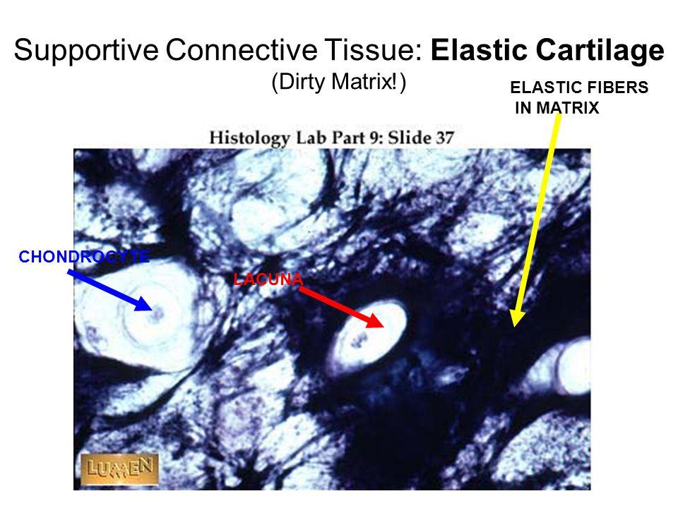 Supportive Connective Tissue: Elastic Cartilage (Dirty Matrix!) CHONDROCYTE LACUNA ELASTIC FIBERS IN MATRIX