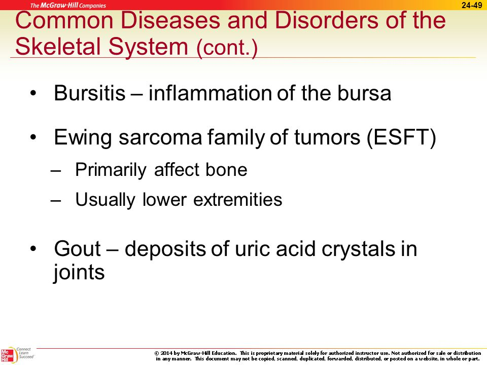 24-48 Common Diseases and Disorders of the Skeletal System Arthritis –Osteoarthritis Degenerative joint disease (DJD) Weight-bearing joints –Rheumatoid arthritis Chronic systemic inflammatory disease Smaller joints and surrounding tissues