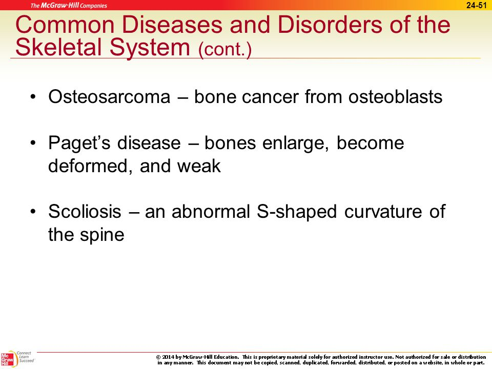 24-50 Common Diseases and Disorders of the Skeletal System (cont.) Kyphosis – humpback Lordosis –swayback Osteogenesis imperfecta – brittle-bone disease Osteoporosis – thin, porous bones