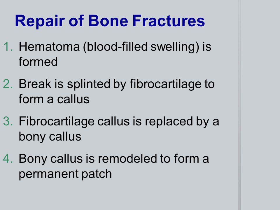 Repair of Bone Fractures 1.Hematoma (blood-filled swelling) is formed 2.Break is splinted by fibrocartilage to form a callus 3.Fibrocartilage callus i