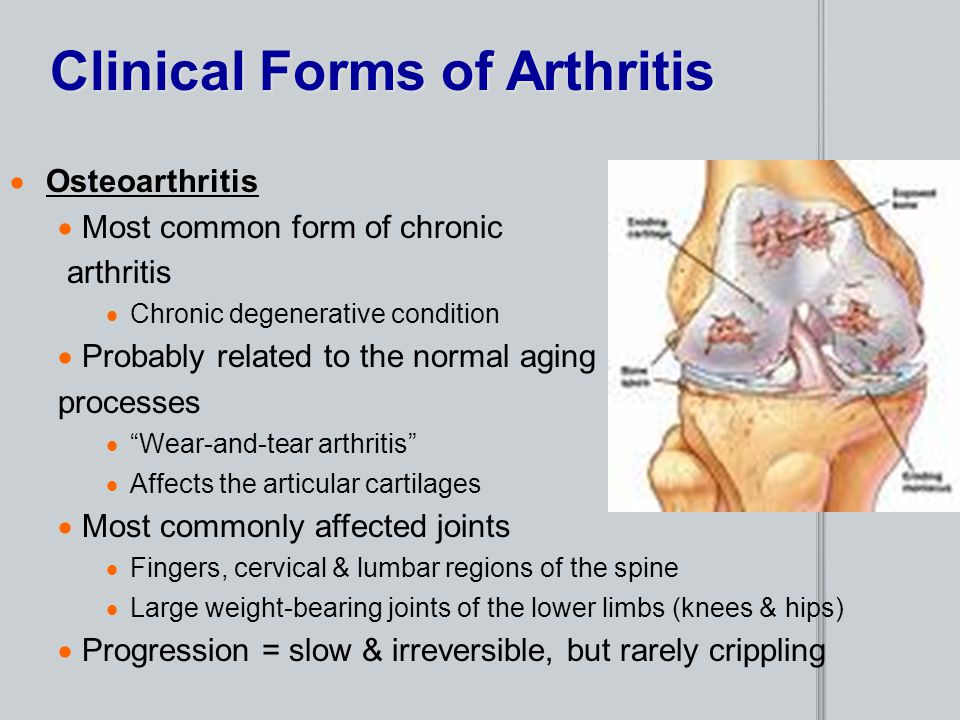 Clinical Forms of Arthritis  Osteoarthritis  Most common form of chronic arthritis  Chronic degenerative condition  Probably related to the normal