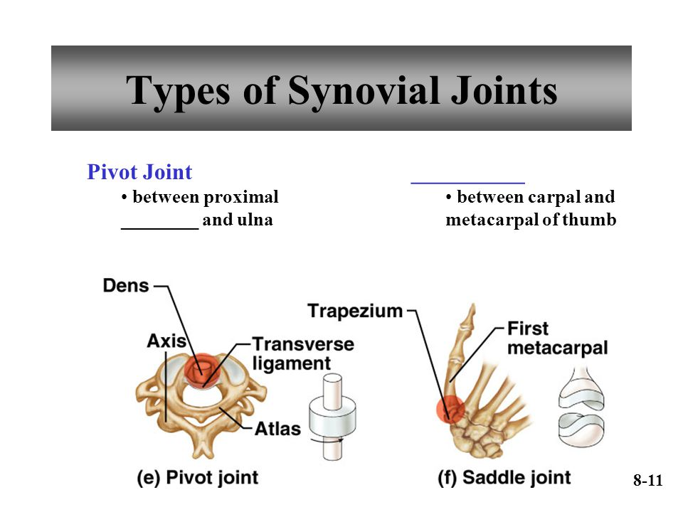 Types of Synovial Joints Pivot Joint between proximal ________ and ulna __________ between carpal and metacarpal of thumb 8-11