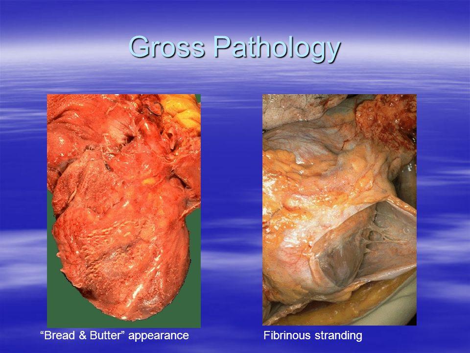 Gross Pathology Bread & Butter appearanceFibrinous stranding