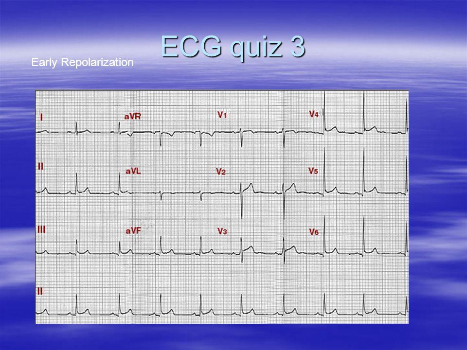 ECG quiz 3 Early Repolarization