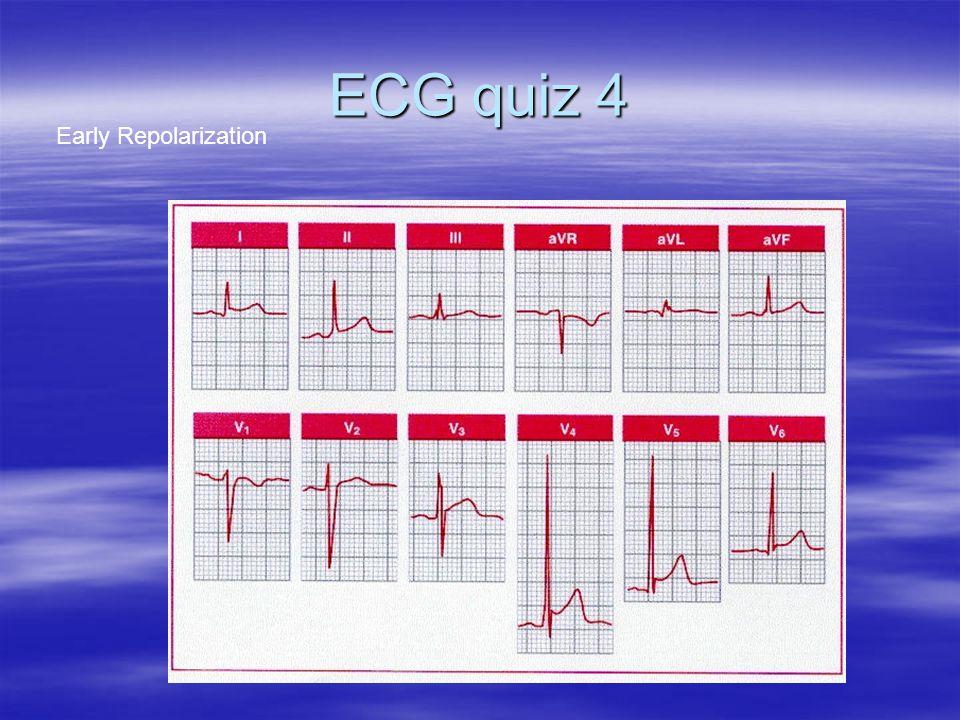 ECG quiz 4 Early Repolarization