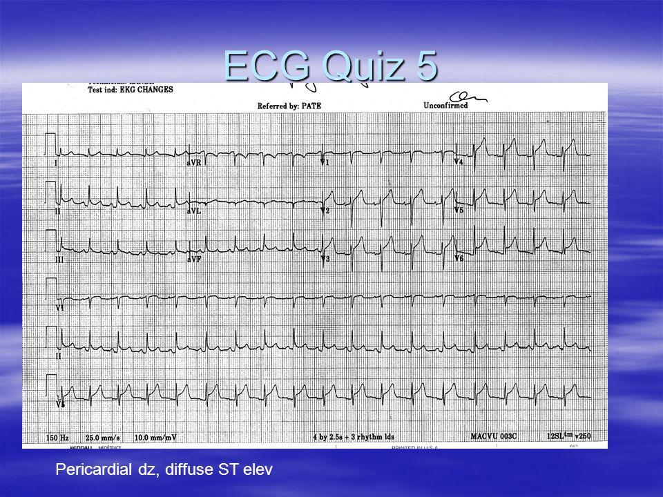 ECG Quiz 5 Pericardial dz, diffuse ST elev
