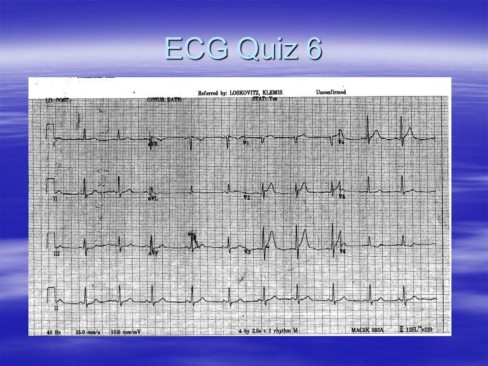 ECG Quiz 6
