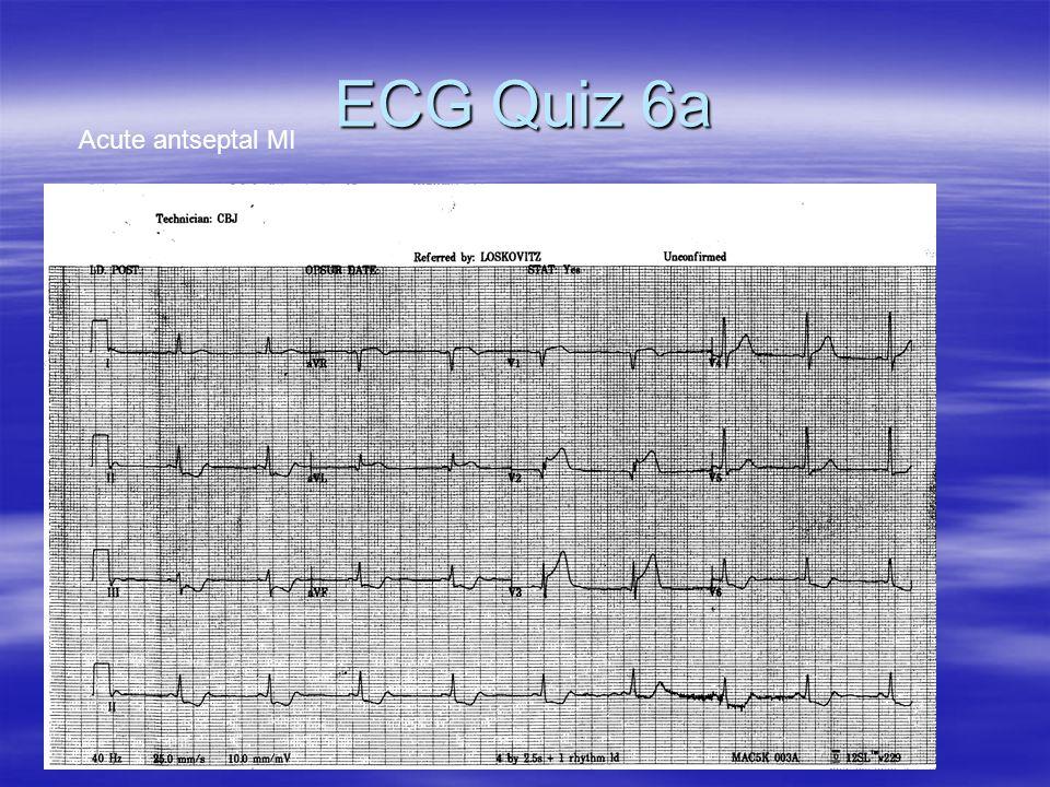ECG Quiz 6a Acute antseptal MI