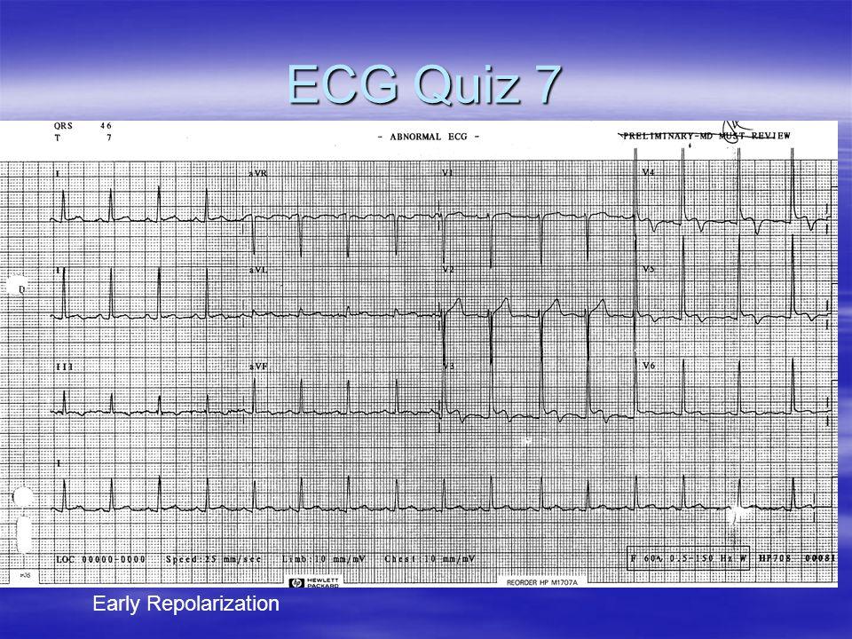 ECG Quiz 7 Early Repolarization