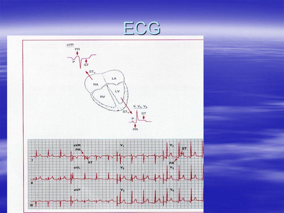 ECG Quiz Acute Pericarditis, Stage I