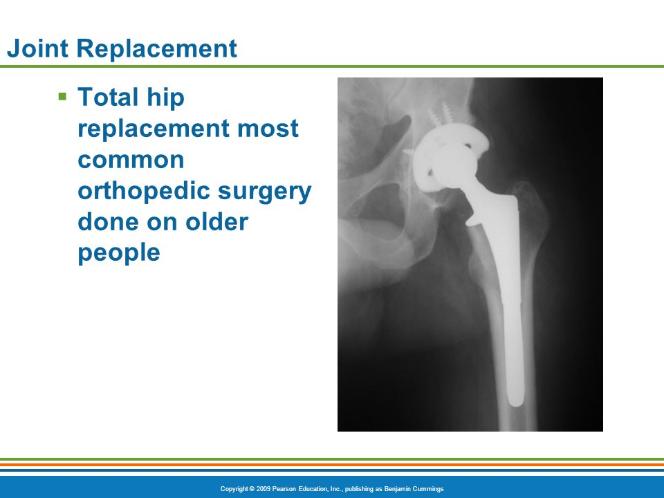 Copyright © 2009 Pearson Education, Inc., publishing as Benjamin Cummings Joint Replacement  Total hip replacement most common orthopedic surgery don